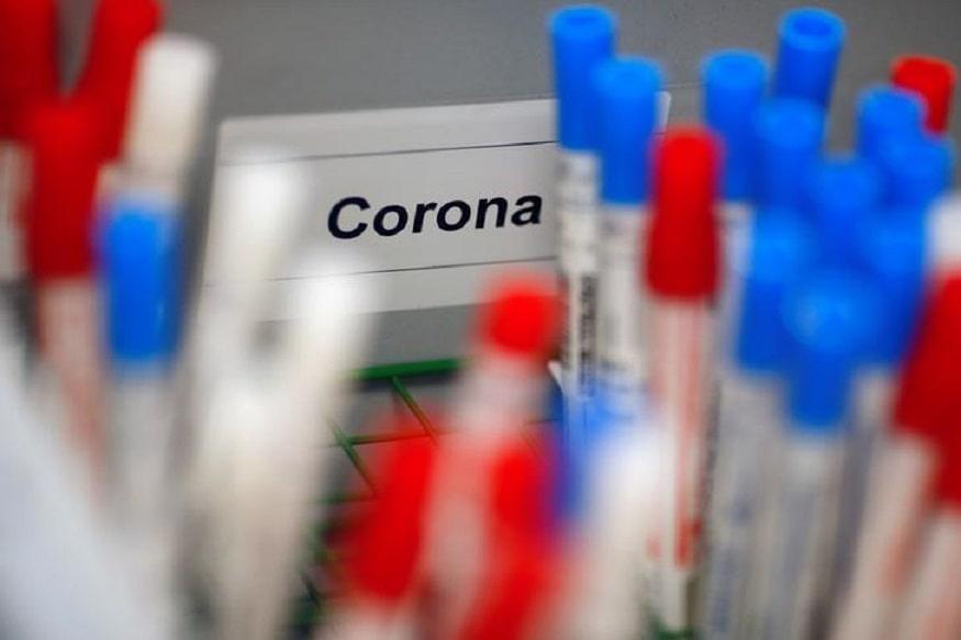 Coronavirus-test-kit-minal-dakhave-bhosale-develop